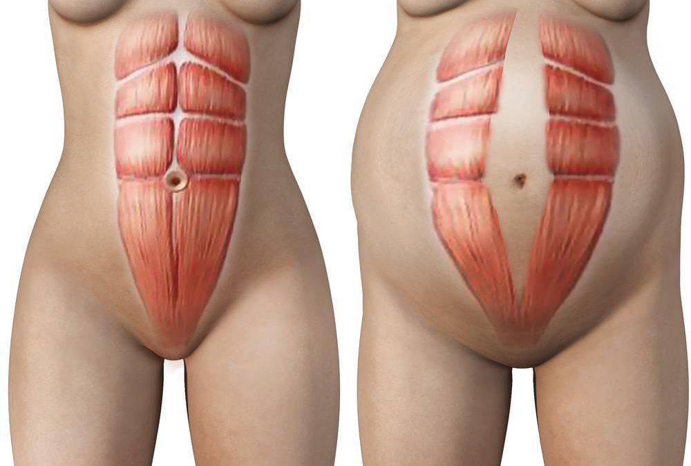 Delade magmuskler/diastas, vad är och innebär det?